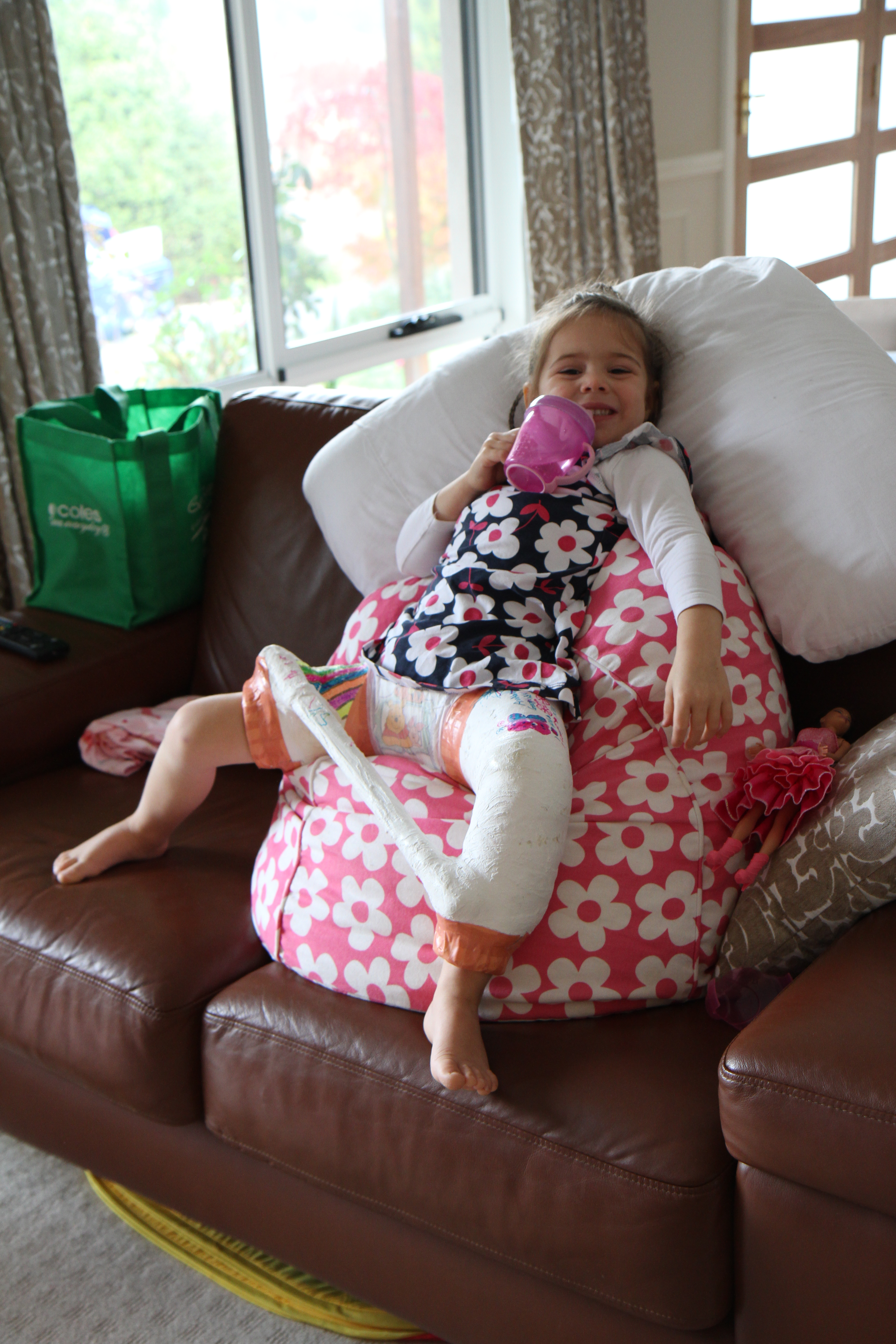 Annabelles Story Hip Sisters Our Journey With Dysplasia